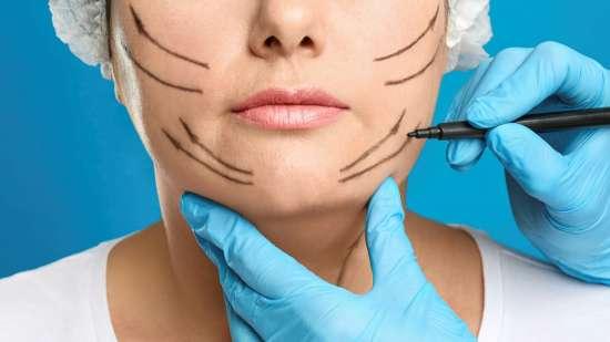 plastic surgery korea